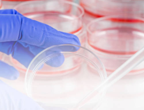 Microbiologie, pourquoi louer une station anaérobie Don Whitley ?